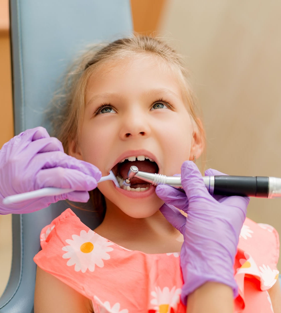 tooth-extraction-cost-Dublin 2