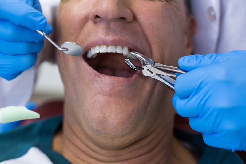 tooth-extractions-Dublin 2